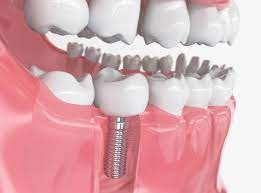 The different types of dental implants