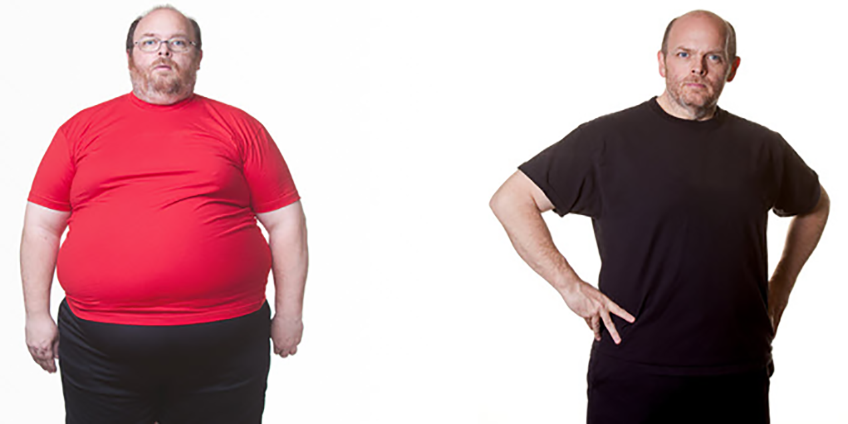 What to Consider Before Bariatric Surgery?